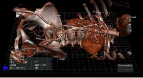 КОМПАНІЯ ECHOPIXEL РОЗРОБИЛА TRUE 3D VIEWER, ЯКИЙ КОНВЕРТУЄ СТАНДАРТНІ 2D СНИМКИ В ІНТЕРАКТИВНІ 3D МОДЕЛІ - Bimedis - 1