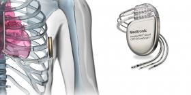 MEDTRONIC запустила нові пристрої для лікування серцевої недостатності - Bimedis - 1